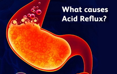 how to get rid of acid reflux during pregnancy