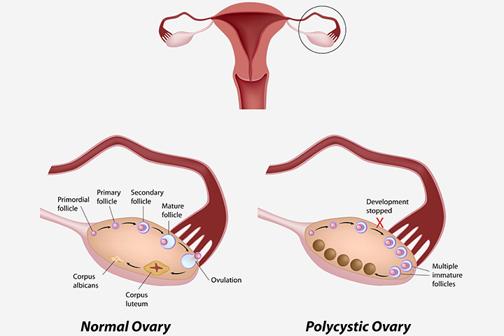 ovarian cyst causing pain