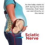 Sciatica In Pregnancy