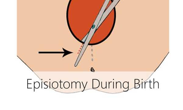 Episiotomy During Childbirth 1