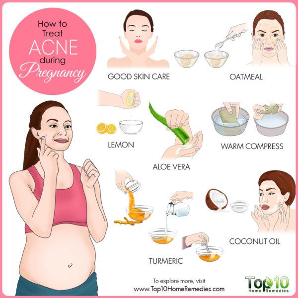 Acne During Pregnancy 1