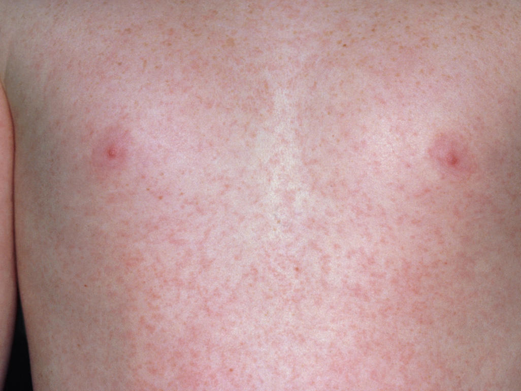 Baby Rash And Skin Conditions 3