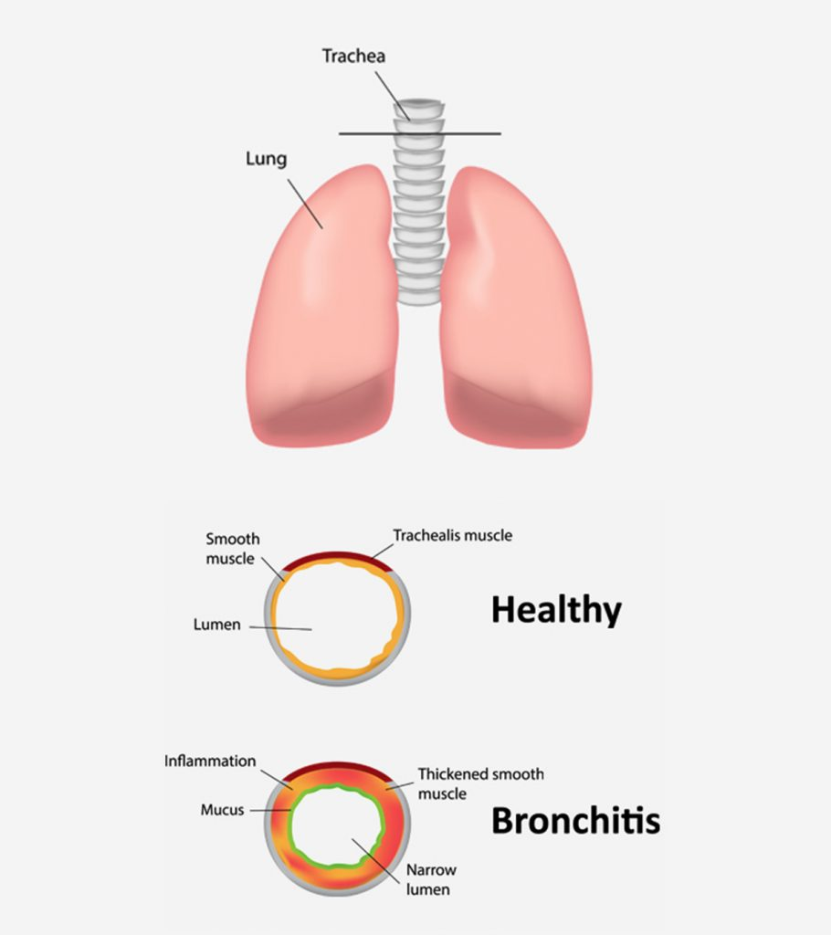 Bronchitis In Children 1