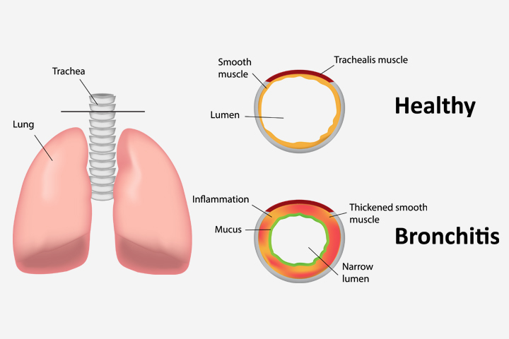 Bronchitis In Children 2