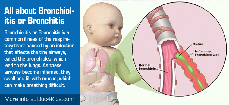 Bronchitis In Children 3