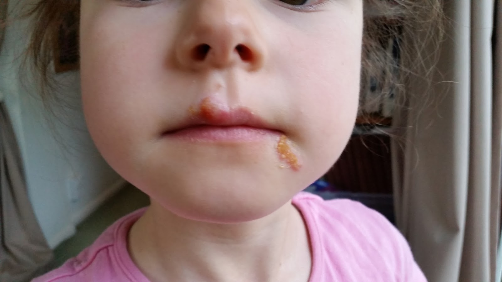 Cold Sores In Children 2