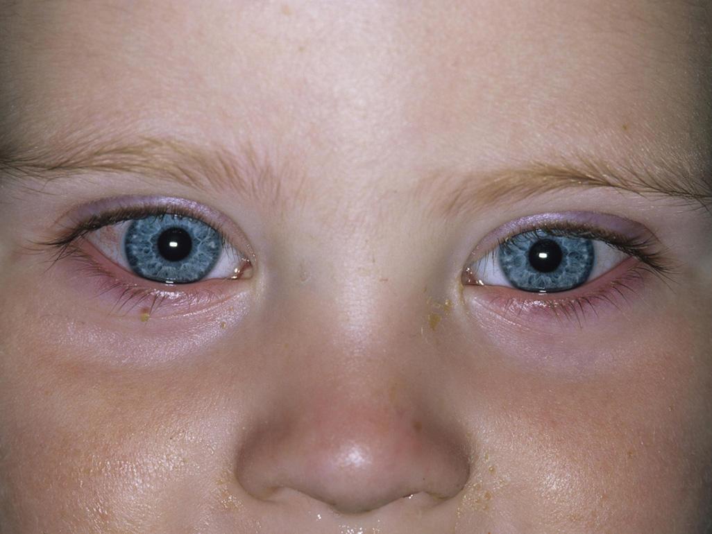 Conjunctivitis (Pinkeye) In Babies 2