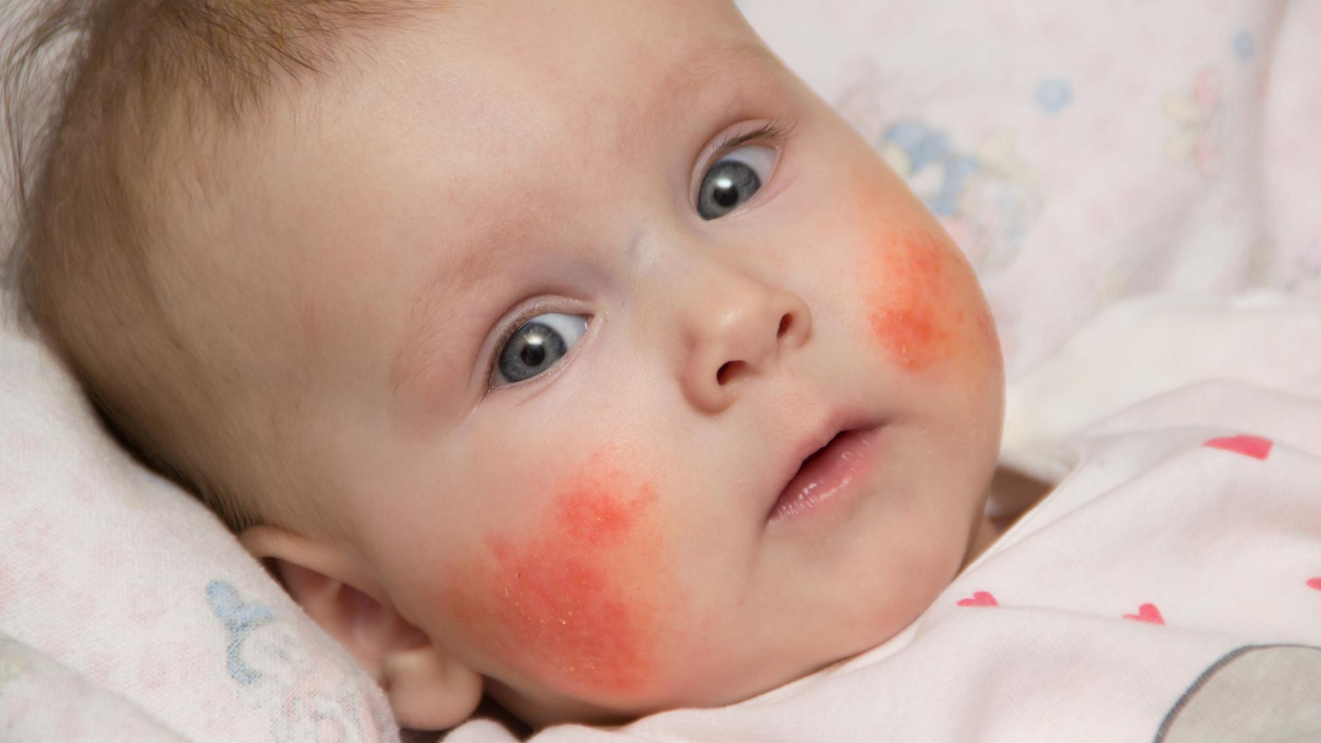 Eczema in babies - BabyCenter Canada