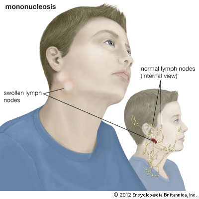 Mononucleosis In Children 1