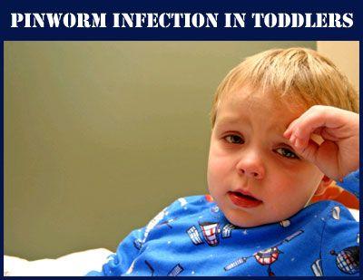 Pinworms In Children 1