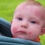 Ringworm In Babies