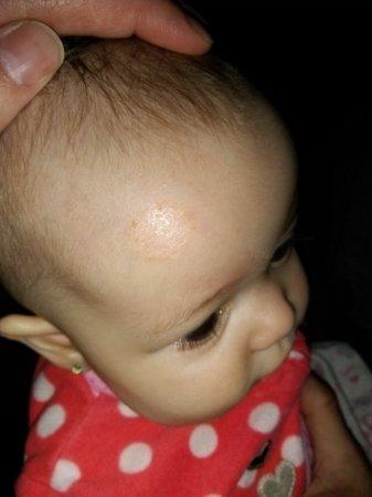 Ringworm In Babies 2