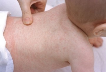 Roseola in adults pregnancy