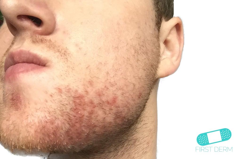Seborrheic Dermatitis 1