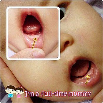 Teething In Baby 2