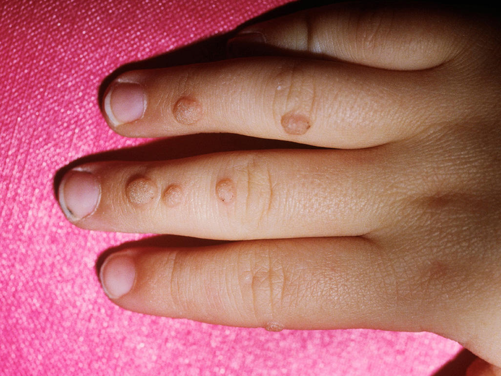 Common Wart in an Infant or a Baby: Condition ... - skinsight