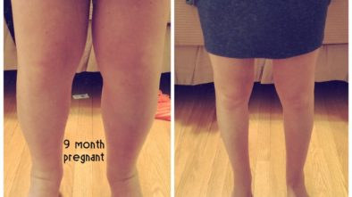 Swelling After Pregnancy