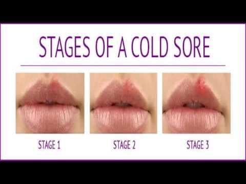 Cold Sore In Pregnancy