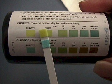 24 Hour Urine Test During Pregnancy