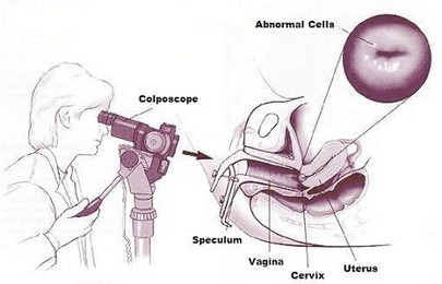 Colposcopy In Pregnancy