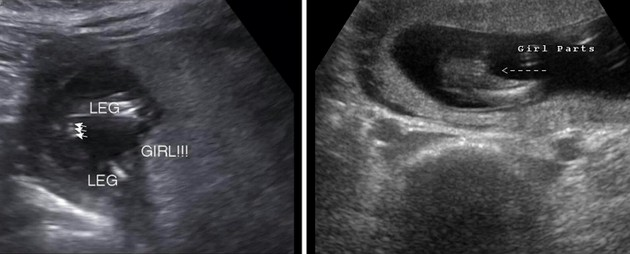 15 Week Ultrasound Girl