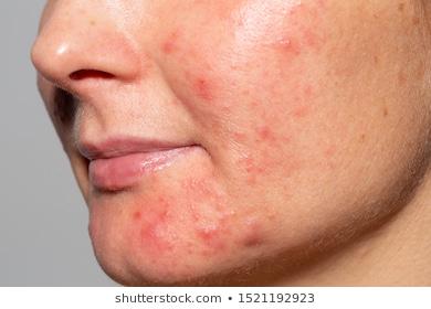 demodicosis rashes