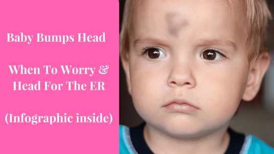What to do When Baby Bumped Head