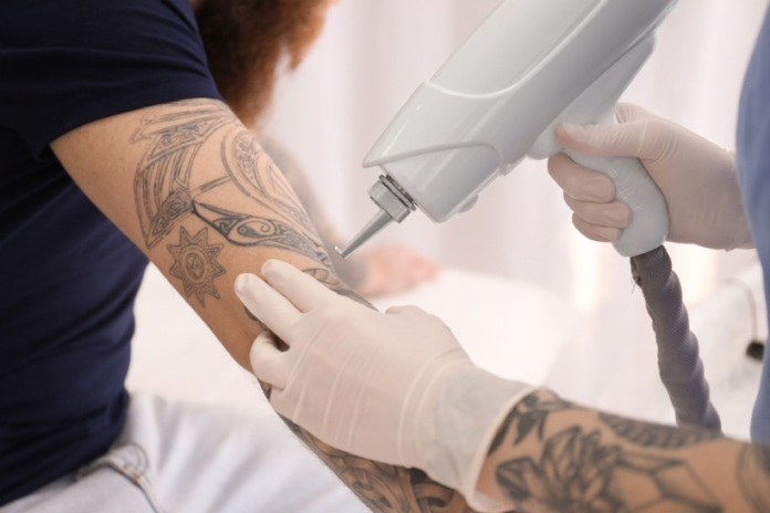 Tattoo Removal During Pregnancy
