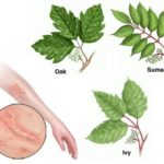 Poison Ivy, Oak and Sumac in Children