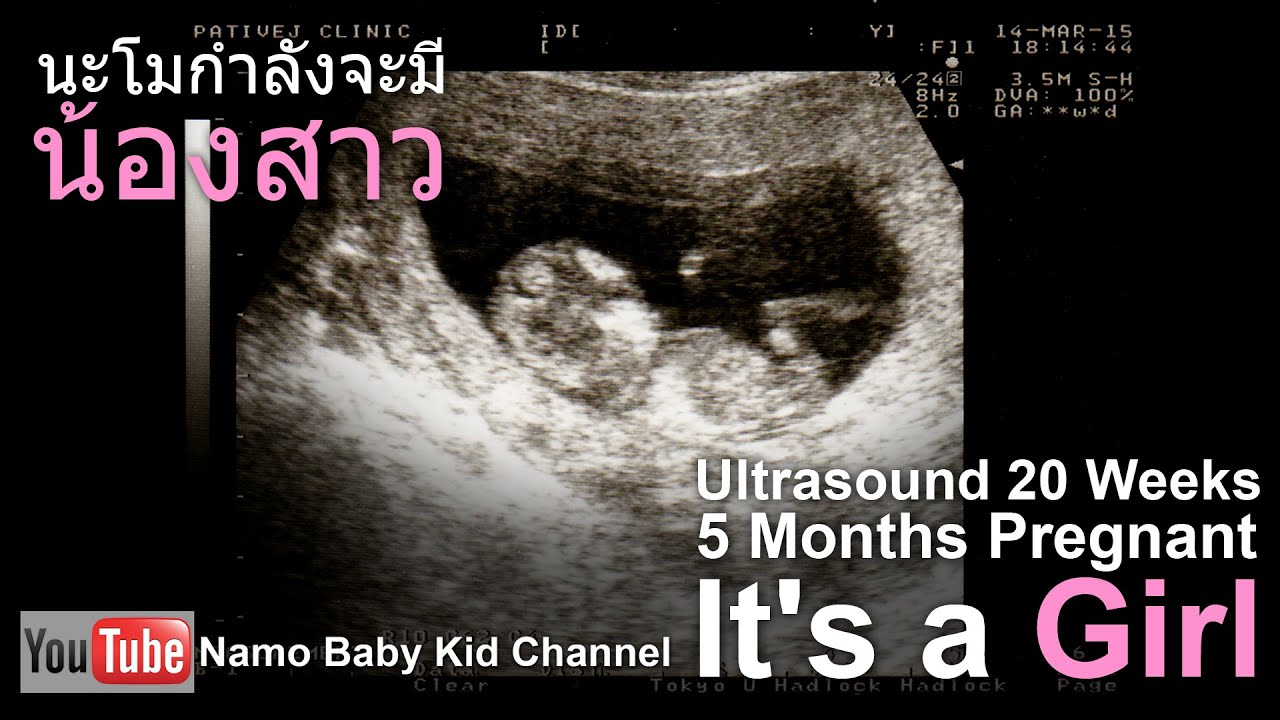 5 Months Ultrasound Girl