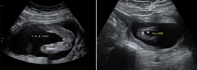 EFSUMB Building a European Ultrasound Community 17 week ultrasound images