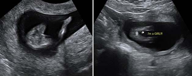 13 Week Ultrasound Girl