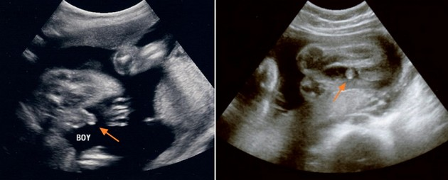 30 Week Ultrasound Boy